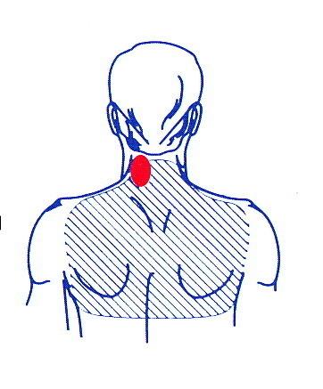 värk i muskler och muskelfästen